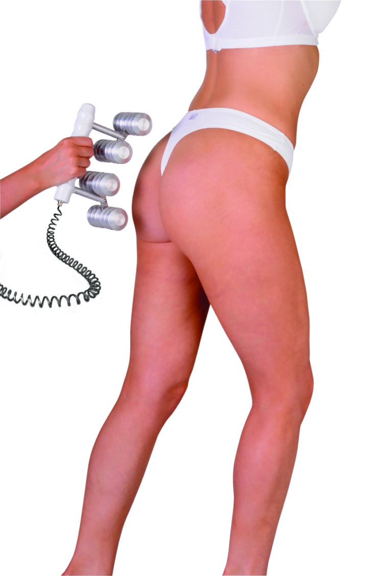 C.A.C.I. Thigh & Buttlock Lift