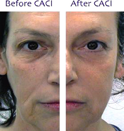 Dear Beauty Caci before / after